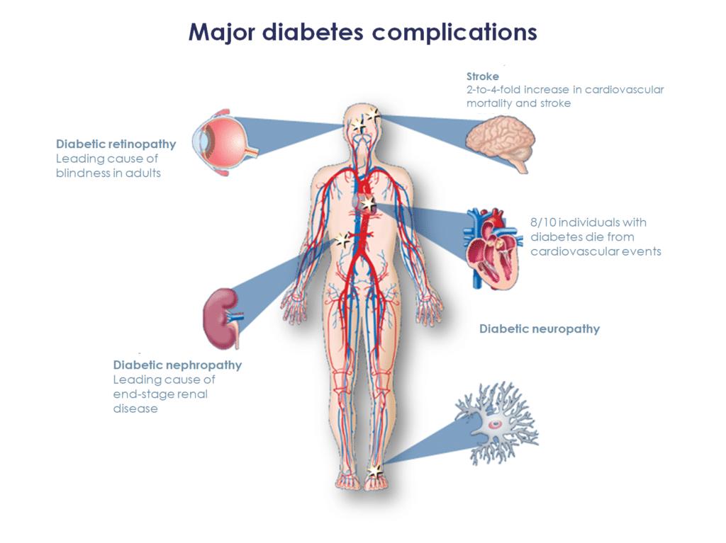 Major diabetes complications